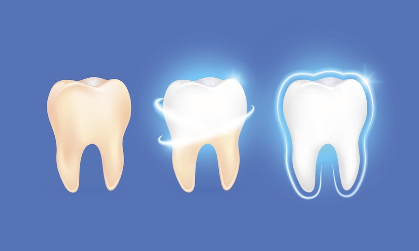 Illustration of teeth with various degrees of whitening